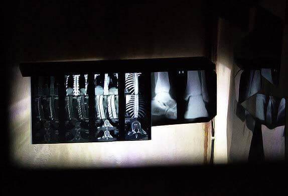 2 Фото квест кімнати Психушка в місті Запоріжжя